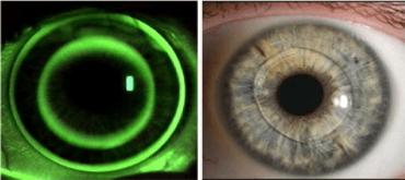 Màster en Optometria i Ciències de la Visió